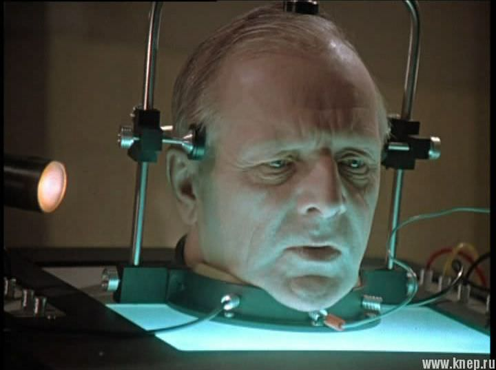 Трансплантация человеческой головы случится через два года